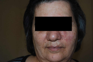 Face before IPL Limelight treatment
