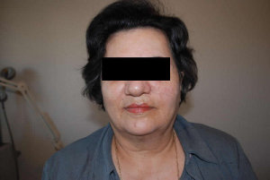 Face after IPL Limelight Treatment