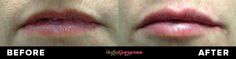 Juvederm Before and After Pictures - Daily Gorgeous patient from Dallas / Fort Worth, Texas.