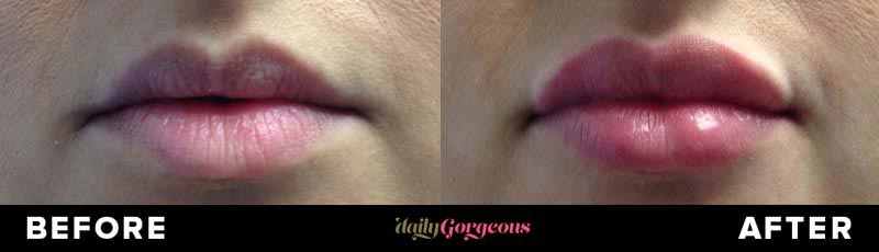 Actual patient (from Dallas / Fort Worth area) photos showing before / after pictures of lip augmentation with filers.