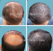Severe Baldness and Botched Strip Surgery Help: First Body Hair Transplant (BHT) Study Offers New Hope for FUE with Novel UGraft® System