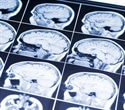 New 3D brain organoid may hold potential in drug discovery, disease modeling