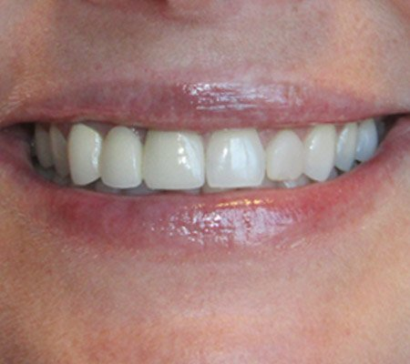 Overbite before procedure in Cary, IL