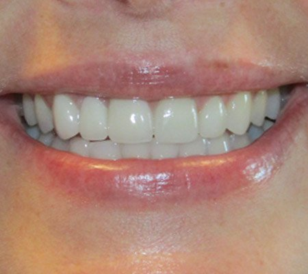 Overbite after procedure in Cary, IL