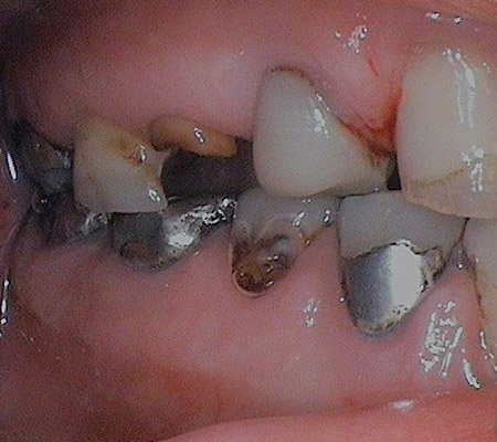 Dental implants before and after procedure in Cary, IL