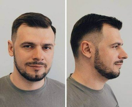 Bald crown hairstyle