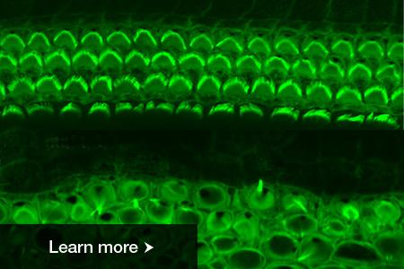 Rows of healthy (top) and rest mutant (bottom) sensory hair cells in the mouse inner ear.