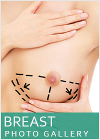Breast Reduction Surgeon Beverly Hills