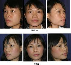 Best rhinoplasty surgeon New York