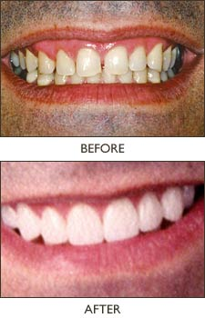 Porcelain veneers are a quick and pain-free