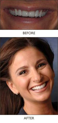 This dream smile was created by Dr. Khazian, using 4 veneers