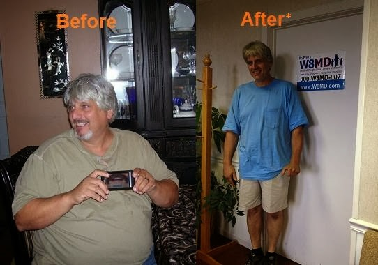 Before and after weight loss Philadelphia