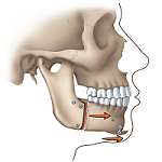 Receding Jaw after diagram
