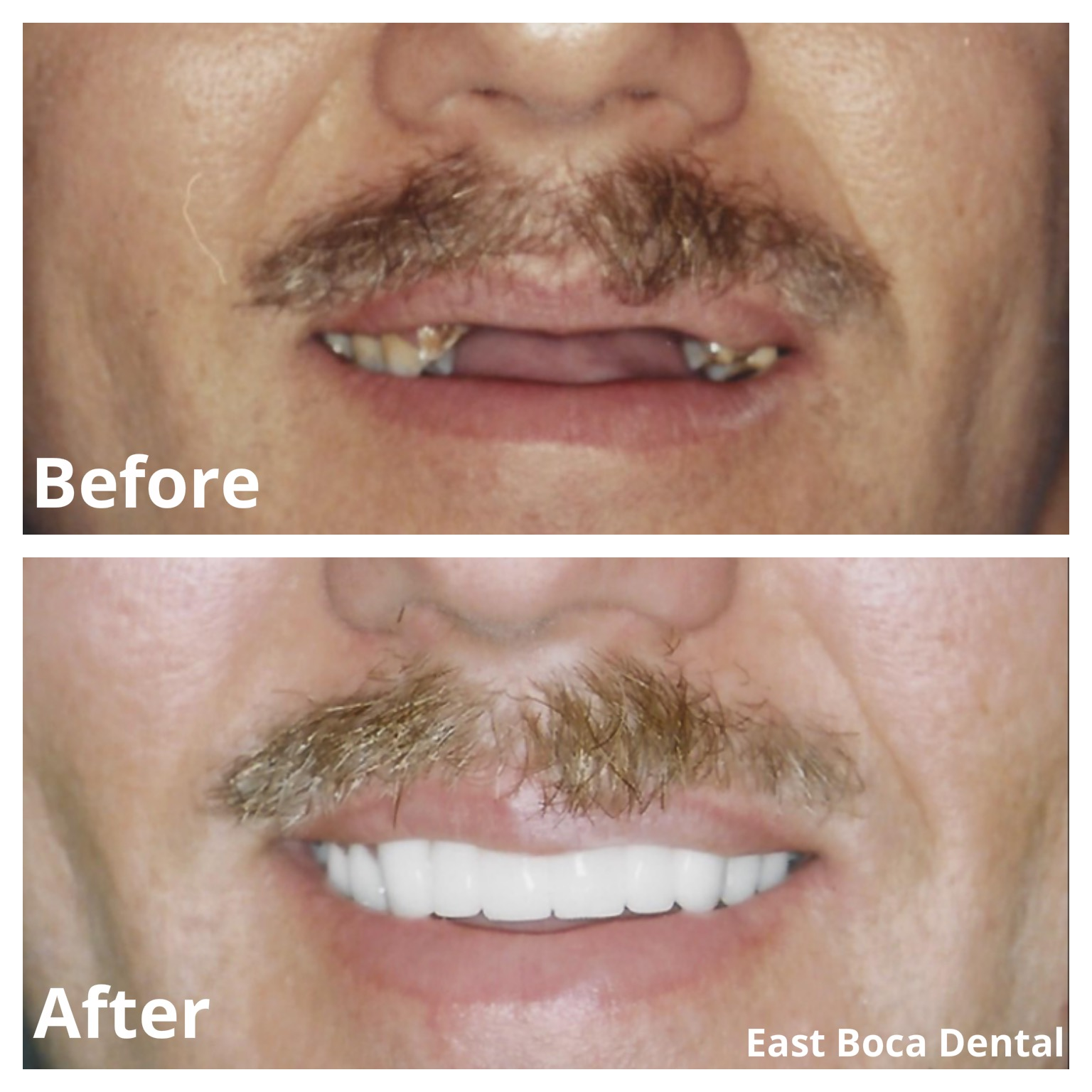 Before and After Cosmetic