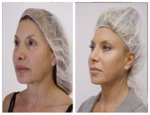 Silhouette Soft Thread Lift London, Harley St, before after