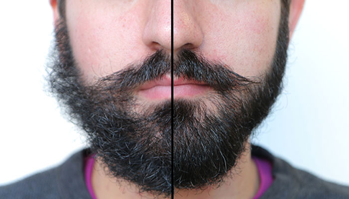 Beard Balm - Before and After