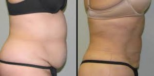 non-surgical Liposuction London, abroad, brussels