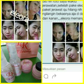 testimoni cream eleora diamond 2