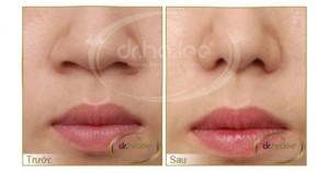 Hiệu quả  trước và sau khi thu gọn đầu mũi, cánh mũi
