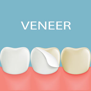 Illustration of dental veneer