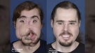 This composite photo shows Cameron Underwood before and after his face transplant surgery. (Courtesy Mary Spano and Eduardo D. Rodriguez, MD, DDS/Hansjörg Wyss Department of Plastic Surgery at NYU Langone Health)