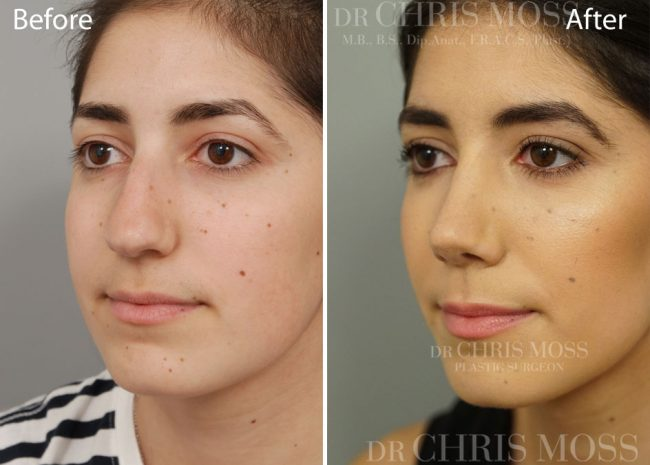 Surgery of the Nose (Rhinoplasty)