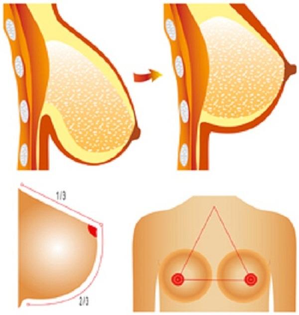 Ngực chảy xệ phải làm sao trở nên căng tròn săn chắc chị em nên biết 4