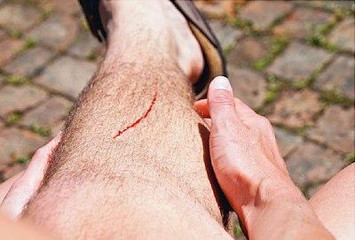 cut on mans lower leg
