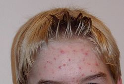 How to get rid of pimplse & acne