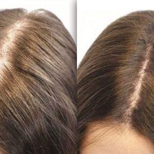Fue hair Transplant London, UK