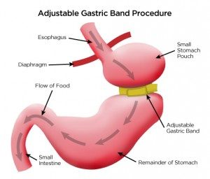 Gastric band, london, uk, abroad, brussels