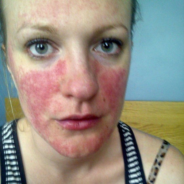 Here's how I've learnt to deal with rosacea 1