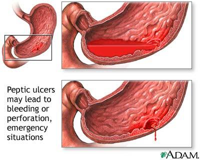 peptic+ulcer+bleeding - I - J