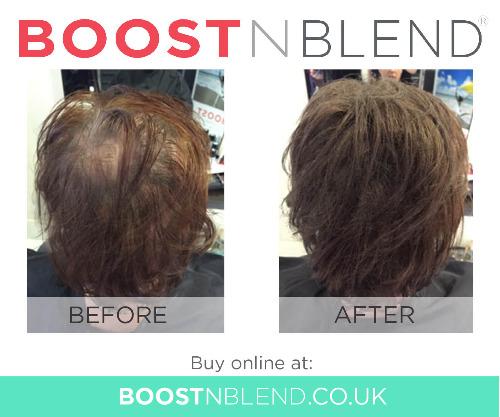 Rụng tóc trong thời kỳ mãn kinh BoostnBlend trước và sau khi hình ảnh