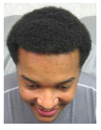 before-after-pictures-with-help-hair-shake-on-young-african-american-male.png