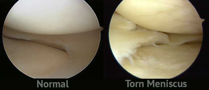 A normal meniscus vs a torn one