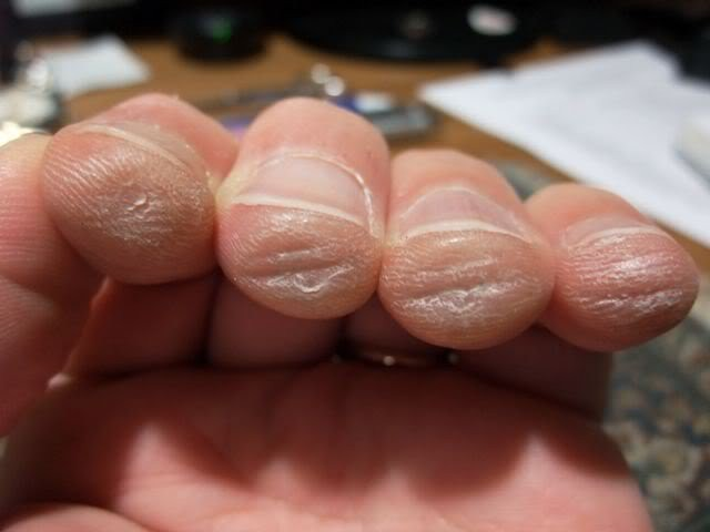 Calluses built up on fingertips.