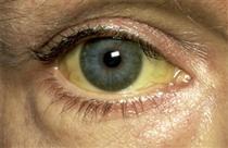 اليرقان.تلون انسجه الجسم بالأصبغه الصفراويه  وخاصه في بياض العينين والجلد والأغشيه المخاطيه نشاهده اذا وصل البليروبين في المصل اكثر من 3 م/غ . وان اصابة الخلايا الكبدية يؤدي الى عودة الصفراء من الجهاز الصفراوي الى المسافات اللمفاوية ومنها الى الدم وبعدها يحدث الصفار (اليرقان)