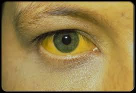 1- تغير لون البول ليصبح داكناً وقد يصبح لونه مقارباً للون الكولا  2- اصفرار في بياض العينين والذي يزداد تديجياً، ويصبح لون الجلد مائلاًً الى الإصفرار بسبب انسداد قنوات الصفراء.