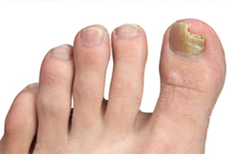 types-of-foot-pain