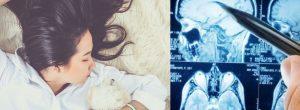 Οι νευροεπιστήμονες προειδοποιούν: πόσο πρέπει να κοιμάστε αν είστε γυναίκα