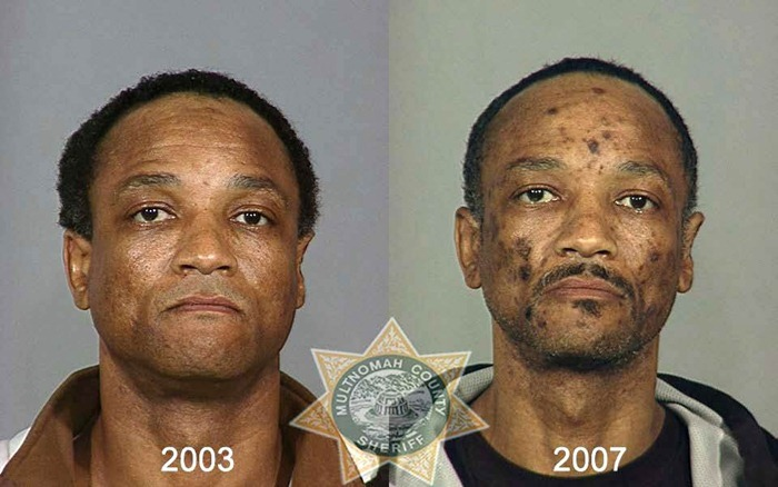 These Before And After Images Of Drug Abuse Will Make You Sick To Your Stomach