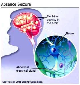 electrical%2Bbrain - Sawan Babi (Epilepsi) Jejas Otak