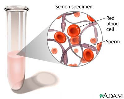 haematospermia+blood+in+semen - R