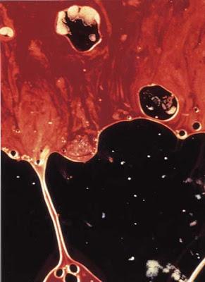 haematospermia+blood+in+semen+2 - Haematospermia - Air Mani Berdarah