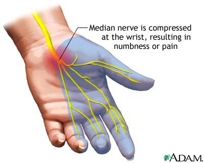 carpal%2Btunnel%2Bsyndrome - S