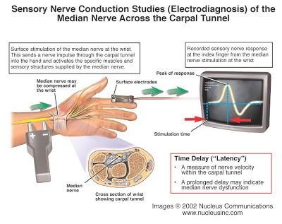 sensory%2Bnerve%2Bconduction%2Bstudies - Sindrom Carpal Tunnel di Pergelangan Tangan