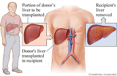 liver+transplantation - Risiko Radang Hati (Hepatitis)