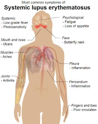 systemic%2Blupus%2Berythematosus%2Bsymptoms - SLE Kecelaruan Sistem Imun