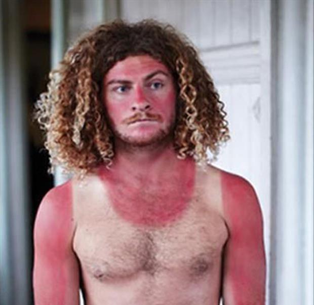 sunburngringo